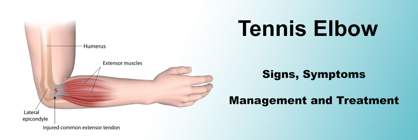 Tennis Elbow excersise Best Physiotherapy - Mayfair Wellness Clinic