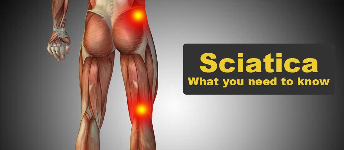 Sciatica What you need to know